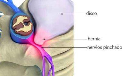 La hernia discal: produce dolor de espalda?